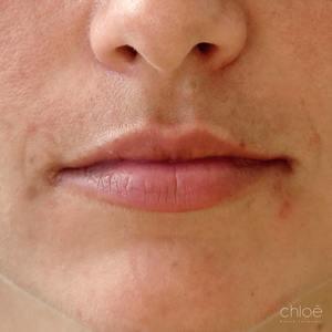 Lèvres naturelles et sexy avec injections d'acide hyaluronique avant Clinique Chloé