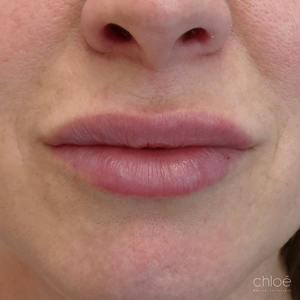 Définition des lèvres avec agents de comblement après Clinique Chloé