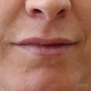Redéfinir contour des lèvres avec agents de comblement avant Clinique Chloé