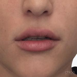 Donner plus de volume aux lèvres avec acide hyaluronique après - Clinique Chloé