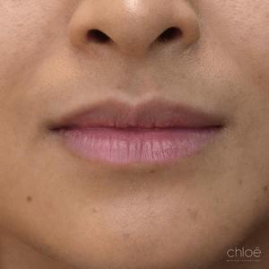 Augmentation des lèvres avec agents de comblement avant - Clinique Chloé