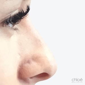 Correction du nez avec agents de comblement après Clinique Chloé
