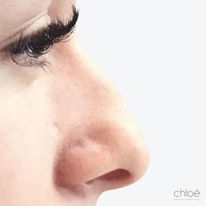Corriger bosse sur le nez avec agents de comblement avant Clinique Chloé