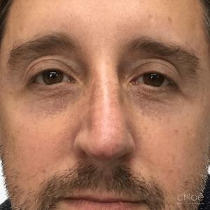 Correction déviation du nez avec agents de comblement après Clinique Chloé