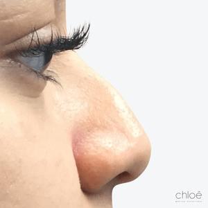 Enlever bosse sur le nez sans chirurgie avant Clinique Chloé