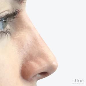 Enlever bosse sur le nez sans chirurgie après - Clinique Chloé