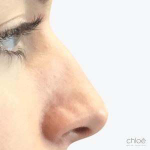 Acide hyaluronique pour la correction du nez sans chirurgie avant - Clinique Chloé