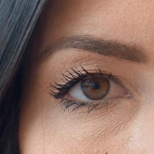 Ouverture du regard avec injections de Botox après Clinique Chloé