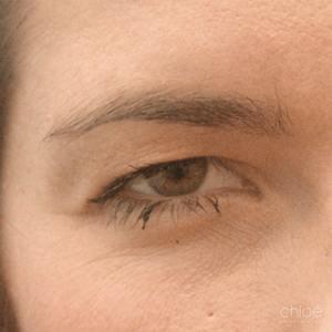 Remonter les sourcils avec Botox avant Clinique Chloé
