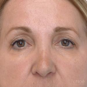 Remonter les sourcils avec Botox après - Clinique Chloé