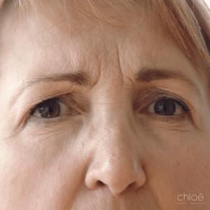 Ouverture du regard avec injections de Botox avant - Clinique Chloé