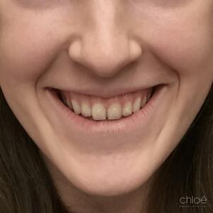 Solution aux gencives trop visibles avec Botox avant Clinique Chloé