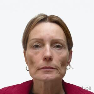Améliorer tonus du visage avec agents de comblement avant Clinique Chloé