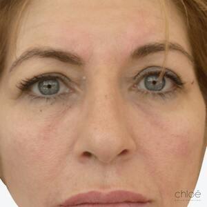 Tonifier le visage sans chirurgie avec agents de comblement après Clinique Chloé