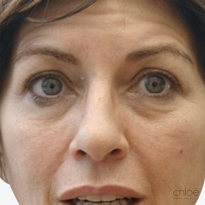 Lift du visage sans chirurgie avec injections d'acide hyaluronique avant Clinique Chloé