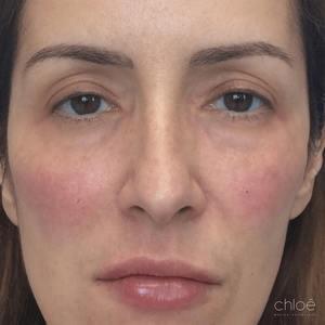 Tonifier le visage sans chirurgie avec agents de comblement après - Clinique Chloé