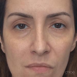 Traitement du tonus du visage avec agents de comblement avant - Clinique Chloé